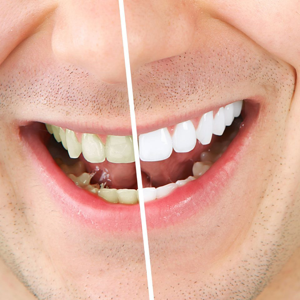 Teeth Whitening Image - Drake Family Dentistry