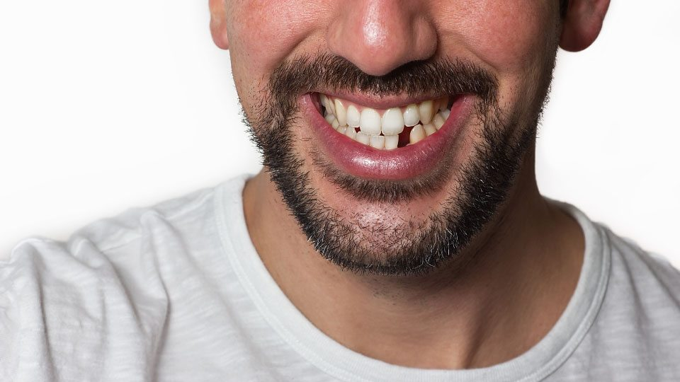 Replacing Teeth with Dental Implants Featured Image - Drake Family Dentistry