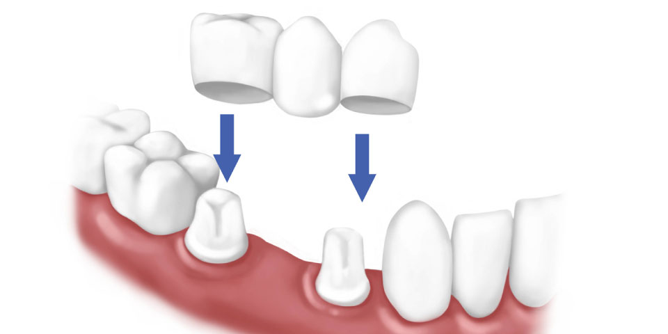 Dental Crowns could be Your Smile Solution Featured Image - Drake Family Dentistry