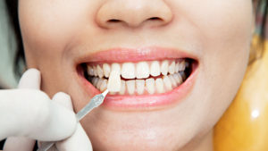 How Long do Veneers Last Featured Image - Drake Family Dentistry