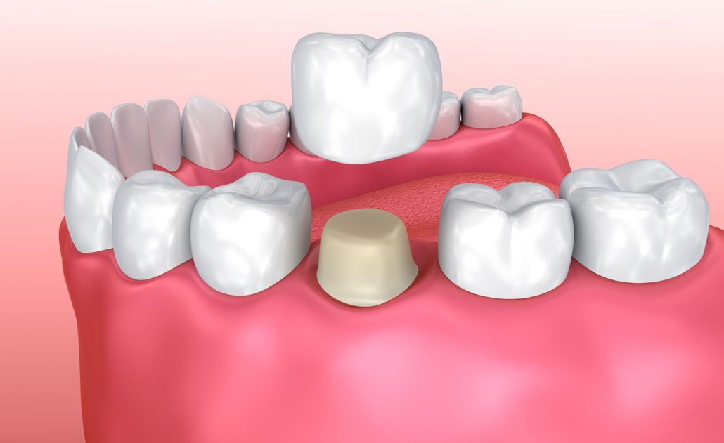 All about Porcelain Crowns Featured Image - Drake Family Dentistry