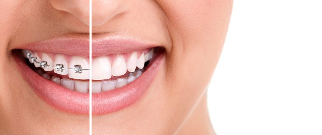 Invisalign Treatment Offer Image - Drake Family Dentistry
