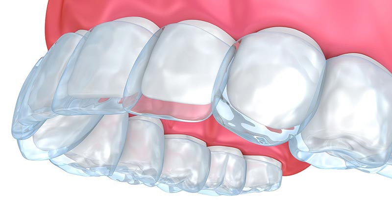 Timeline Of Invisalign Treatment Featured Image - Drake Family Dentistry