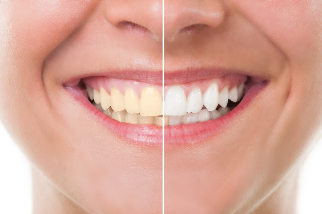 Whitening Special Featured Image - Drake Family Dentistry