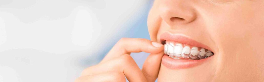 Invisalign Delivers The Smile Of Your Dreams Featured Image - Drake Family Dentistry